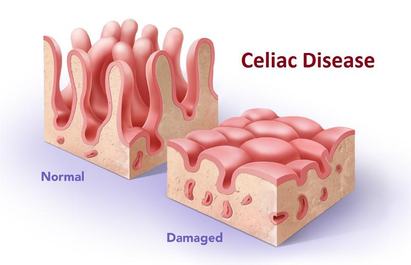 https://medivizor.com/blog/2016/10/19/celiac-disease/