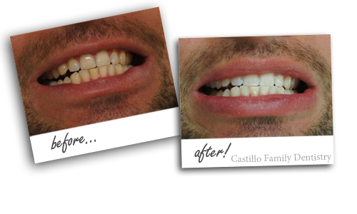 Before and after photo of teeth whitening done here at Castillo Family Dentistry in Toccoa.