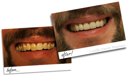 A before and after photo of crown work done at Castillo Family Dentistry in Toccoa.