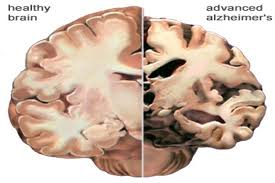 Healthy and advanced Alzheimer's brain