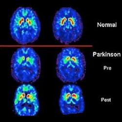 Esame PET CEREBRALE  :   Tipico profilo di confronto, tramite analisi PET, tra cervello normale e affetto. Si nota come nel Parkinson ci sia un ridotto funzionamento (evidenziato dal colore rosso) nei neuroni dei gangli
