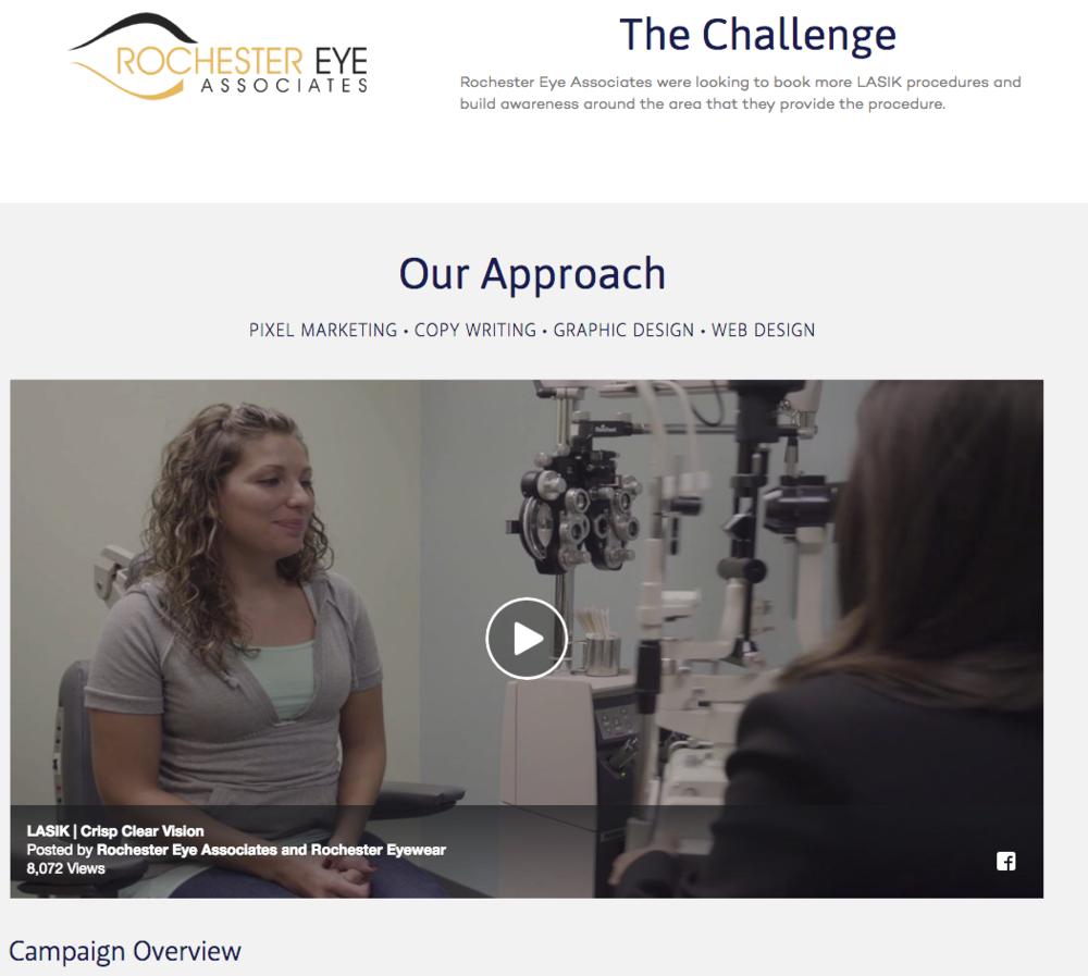 rochester eye associates -