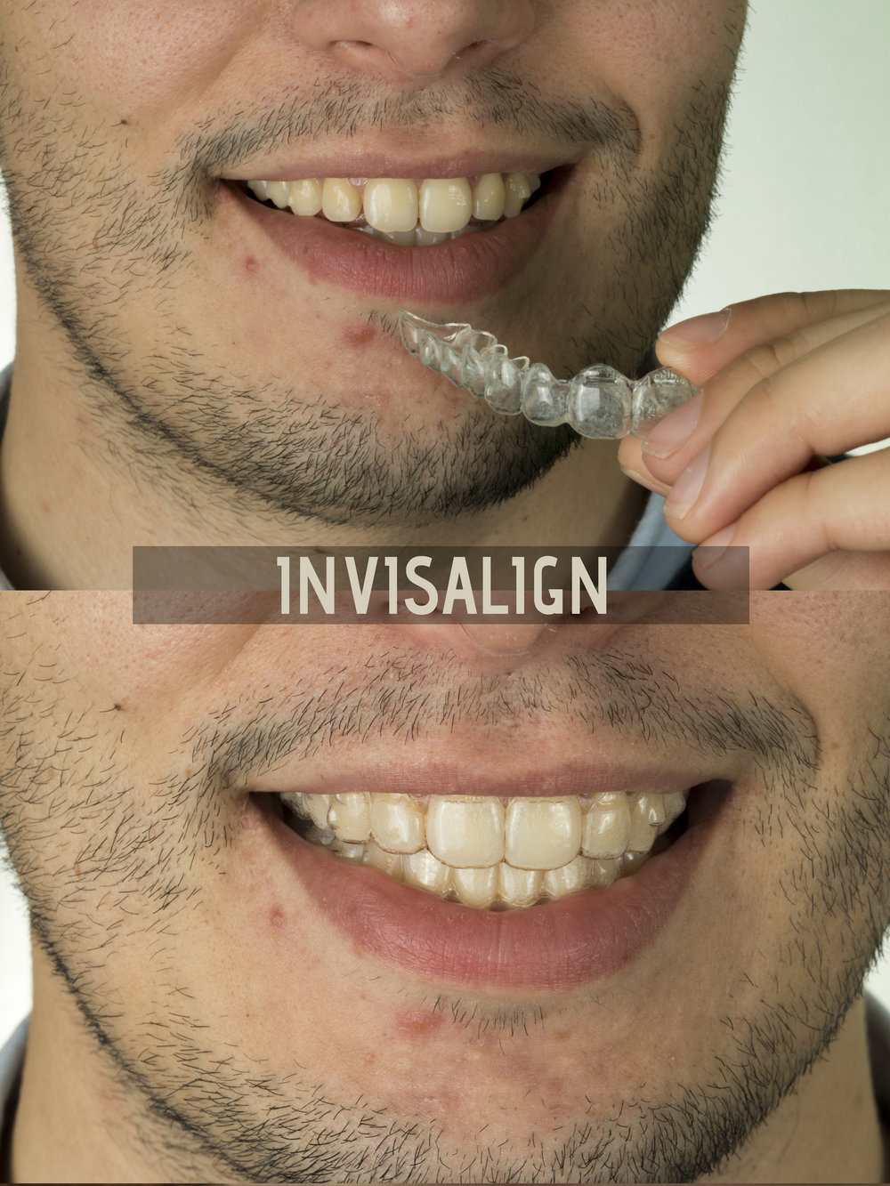 invisalign final mauro.jpg