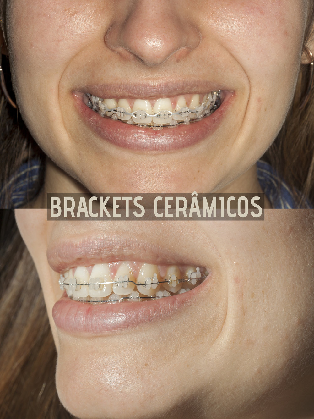 brackets cerâmicos final leo.jpg