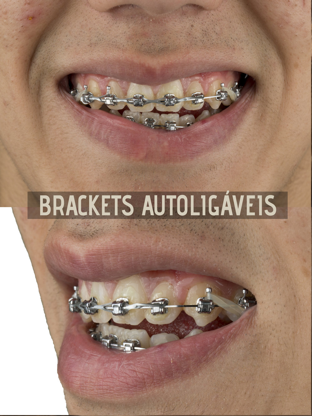 brackets autoligaveis final.jpg