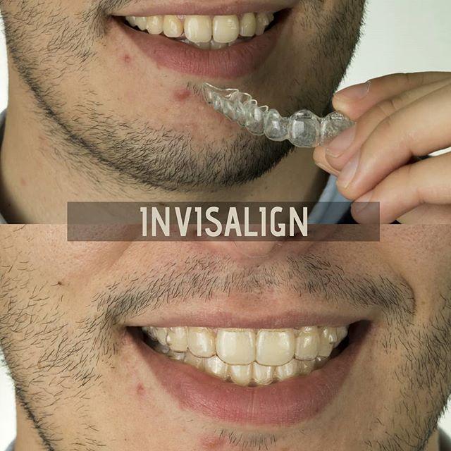 Valorizamos a Estética  www.soniaalves.com  #ortodontia #estética #aesthetics #smile #dentistry #dentistryworld #ortodontiainvisivel #coimbra #castrodaire #coimbralovers #aligners #invisalign #bracketsceramicos #clinicasoniaalves #soniaalves #portuguesedentistry #orto #orthoworld #orthodontist
