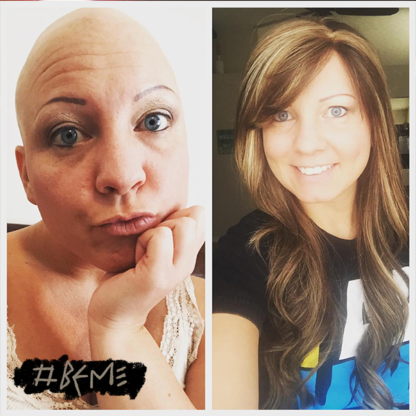 From Instagram @aubsdavis817  Pumped to see @tedashii tonight for the first time in 2 years. His new song #beme encourages people to be the person God created you to be. And it's my favorite jam right now! Here's my #BeMe post... I've struggled with a disease called alopecia for 22 years and I've spent many of those years trying to hide it, but this is who God created me to be and I must embrace it. 😊 No hair or a wig, God thinks I'm beautiful!