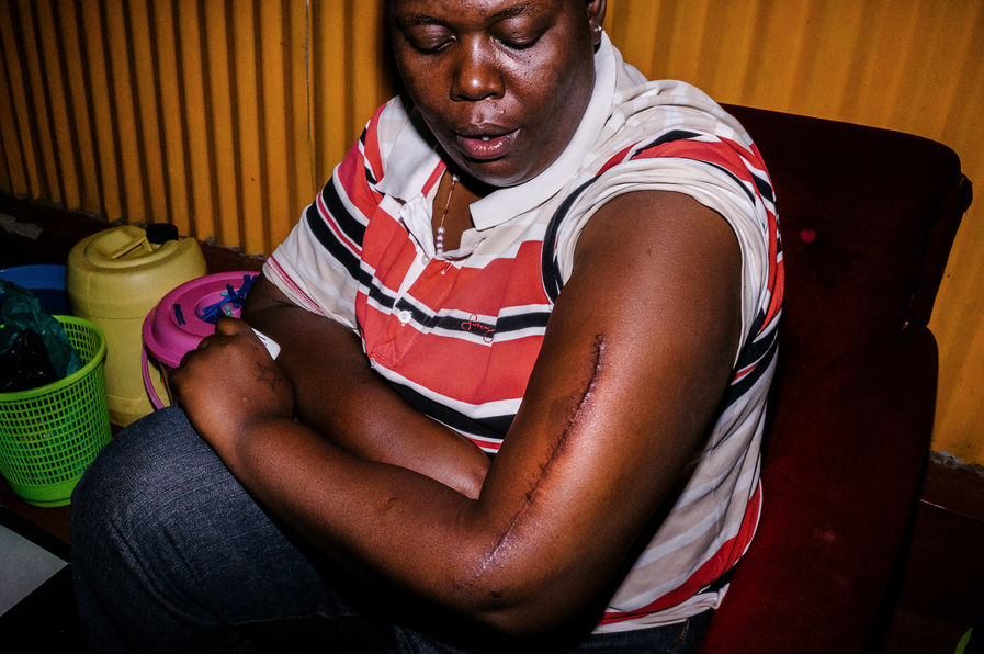 Cynthia displays a scar she received at the hands of Burundian police when they attacked her because of her sexuality.