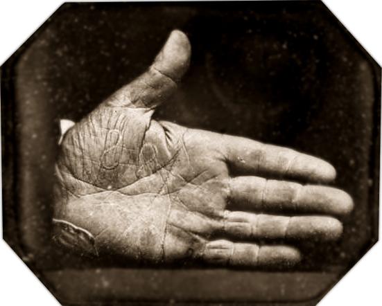 Southworth & Hawes. (1845).  Captain Jonathan Walker's Branded Hand . Daguerreotype.