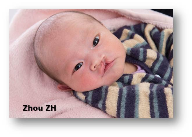 Medical Condition: Cleft lip and palate/医疗需求-唇腭裂