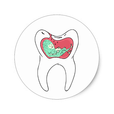 Tooth Decay Sticker