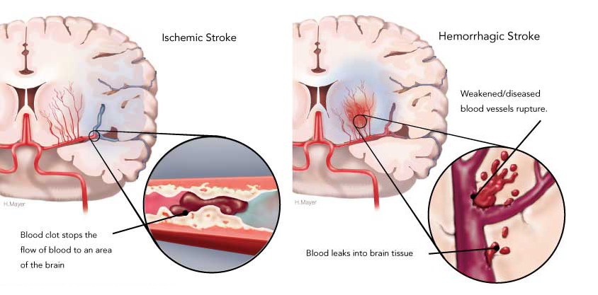 Stroke occurs when a clot forms in the arteries in your brain, preventing oxygenation. This can also cause your arteries or veins to burst and cause bleeding in your brain.