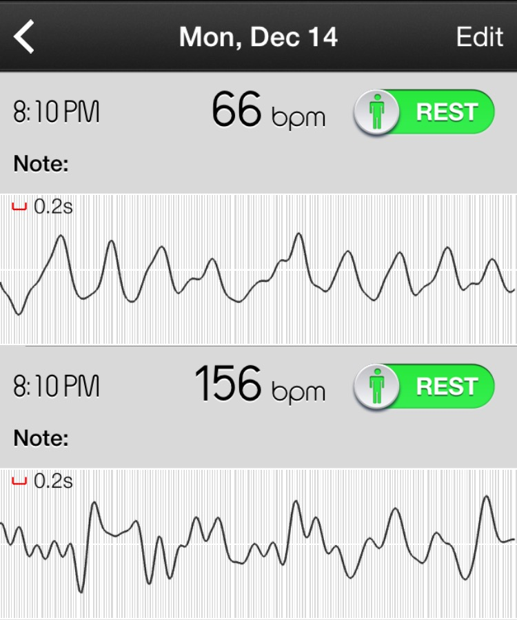 An abnormal rhythm can be see on a simple heart rate app such as this. Abnormal rhythms will have abnormal jumps in heart rate from one moment to the next, even at rest.