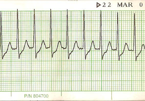 Heartability Education: Q: What is supraventricular tachycardia? A:Supraventricular tachycardia (SVT)[1] is an abnormal heart rhythm arising from improper electrical activity of the heart. It is a type of rapid heart rhythm originating at or above the atrioventricular node. It can be contrasted with the potentially more dangerous ventricular tachycardias—rapid rhythms that originate within the ventricular tissue.