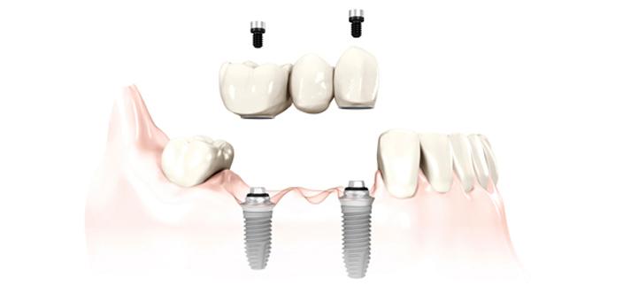 Multiple-Dental-Implants-New-Westminster.jpg