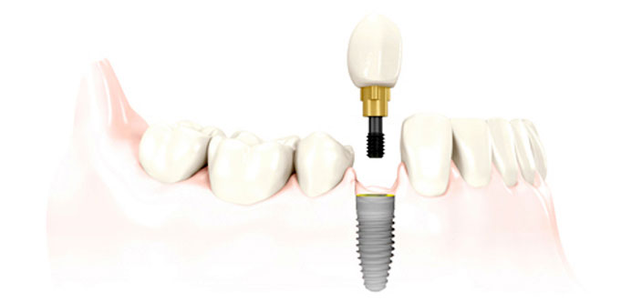 Single-Dental-Implants-New-Westminster.jpg