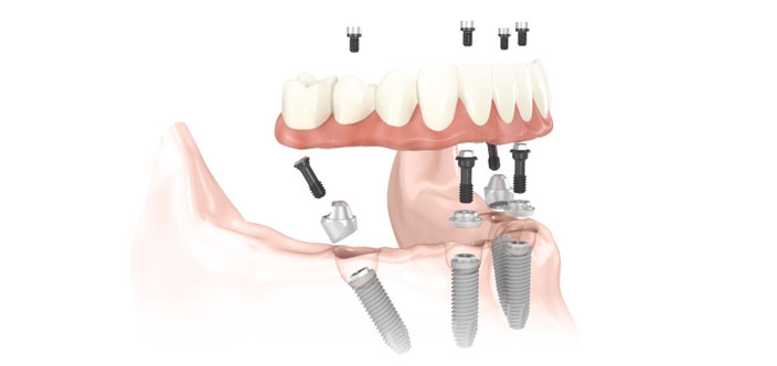 Multiple-Dental-Implants-New-Westminster.jpg