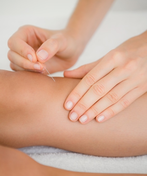 Portland Knee Acupuncture - Natural, Effective Pain Relief