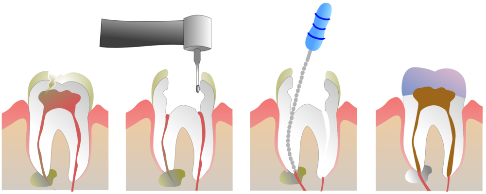 root-canal-dentist