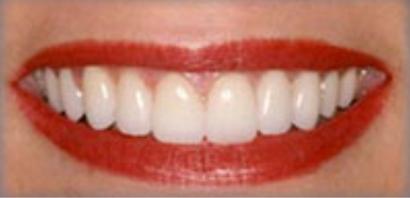 after-veener-treatment-east-leigh-dental-care
