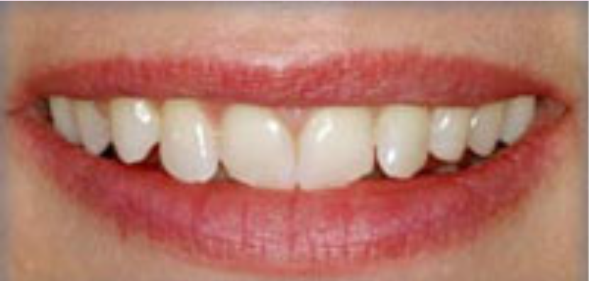 before-veneers-east-leigh-dental-care-leeds