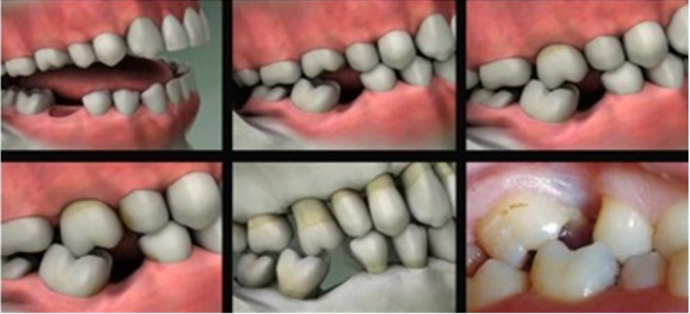roberton-fibre-bridge-leeds-huddersfield-bradford-dentist