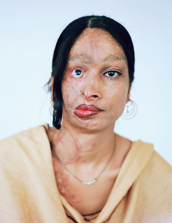A portrait of Memona, an acid-attack victim, by Izabella Demavlys