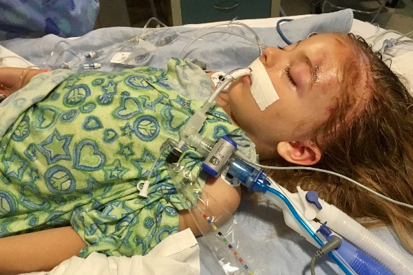 Lennox Lake is recovering from severe injuries -- after an illegal alien smashed into the family car. PHOTO: Lake Family