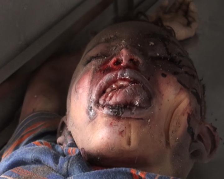 Ibb, Yemen 13 April 2015