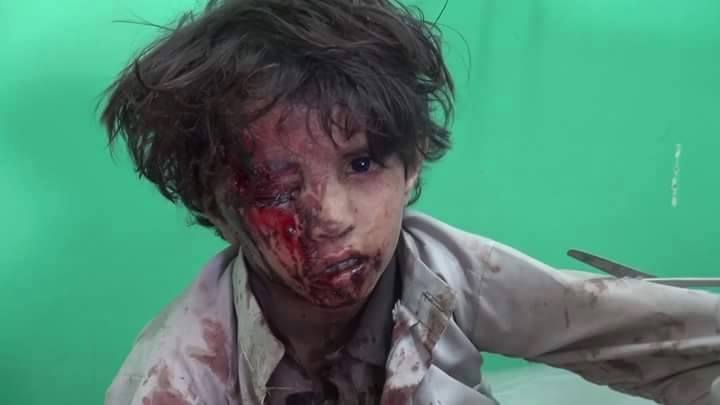 Saada, Yemen  31 May 2015