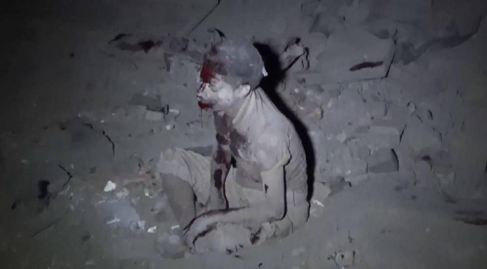 Sanaa, Yemen 6 June 2015