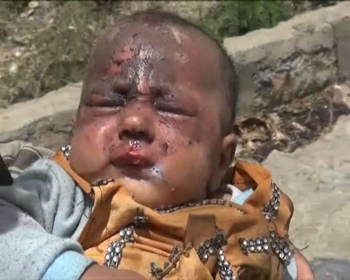 Saada, Yemen  20 April 2015