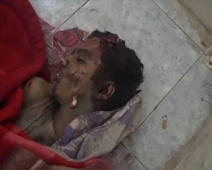 Taiz, Yemen  27 May 2015