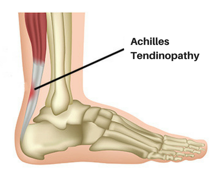 Achillis Tendinopathy Diagram.jpg