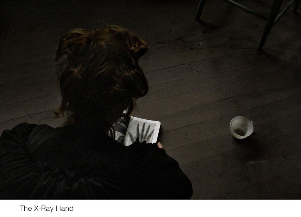 the-xray-hand.jpg