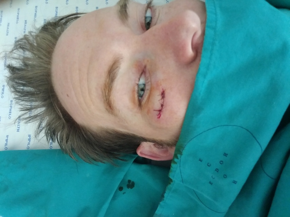 Stitches selfie in a mission hospital in South Africa after Nate got bitch slapped by a surf board.