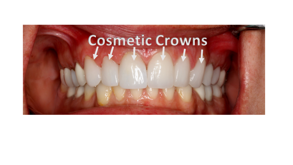 Cosmetic Crowns.png