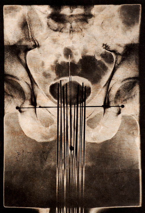 Peter Myers  Inner Space  Photogravure