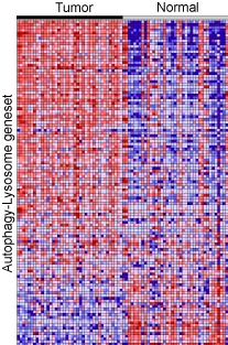 Heatmap showing coordinate up-regulation of autophagy-lysosome genes in PDA versus matched normal tissue.