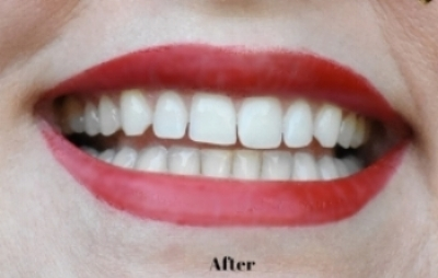 Smile Brilliant Before and After Photo