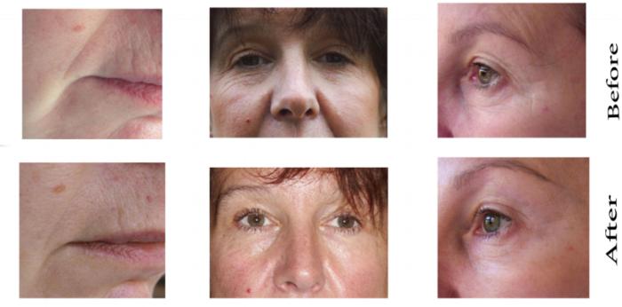 Photos sourced from: website of Mei Zen founder Dr. Martha Lucas  http://www.cosmeticacupunctureseminars.com/results-cosmetic-acupuncture-seminars.html