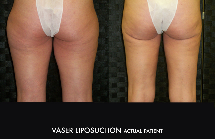 Dr. Kirk Vaser Liposuction Westminster