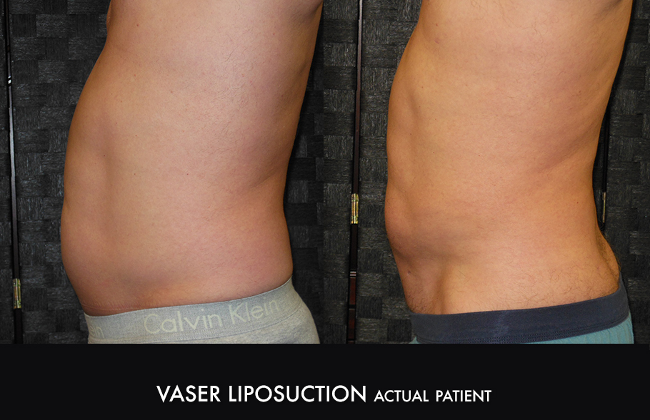 Dr. Kirk Northern Colorado Vaser Liposuction