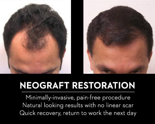 Hair Restoration by Jack Zamora MD