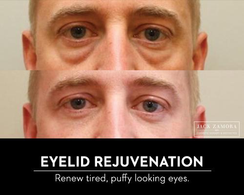 Eyelid Rejuvenation by Jack Zamora MD