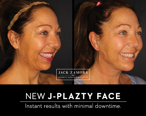 J-Plazty Face by Jack Zamora MD
