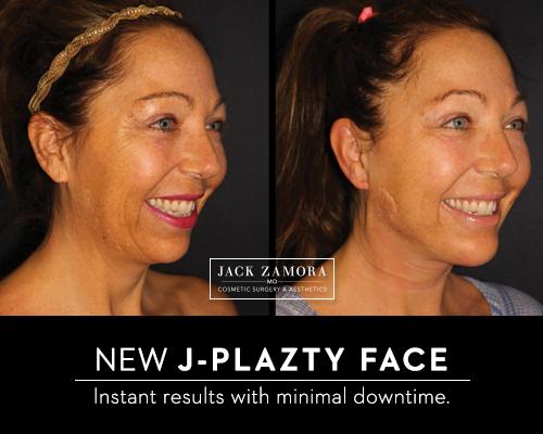 J-Plazty Face by Jack Zamora MD