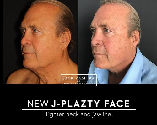 JPlazty by Dr. Jack Zamora