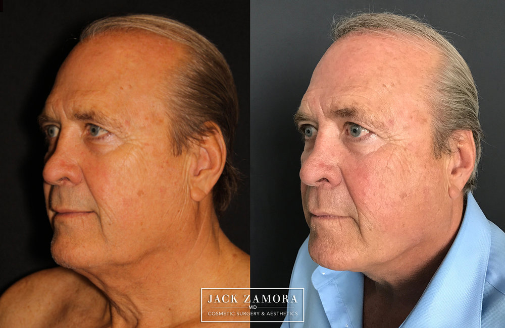 JPlazty using J-Plasma by Dr. Zamora