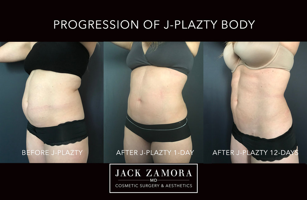 J-Plazty_Body_by_Dr._Jack_Zamora.jpg